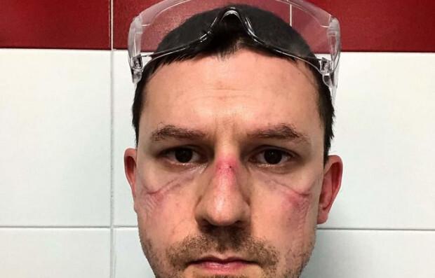 Foto: Kad varoņi noņem maskas: mediķu sejas pēc vairāku stundu cīņas pret Covid-19