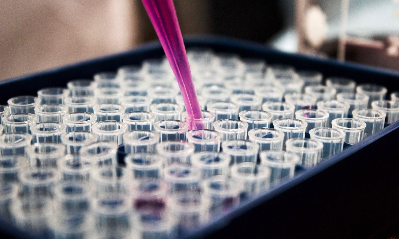 Pētījums: koronavīruss 60 grādu pēc Celsija augstā temperatūrā izdzīvo stundu