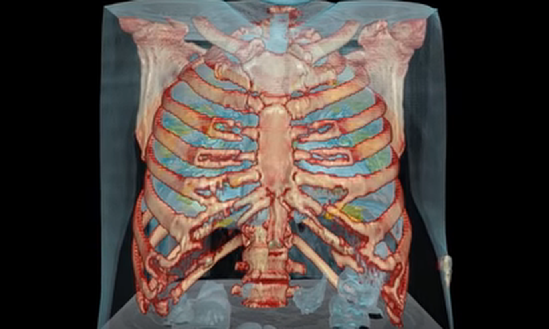 Video parādīti koronavīrusa pacienta plaušu bojājumi īsi pēc saslimšanas